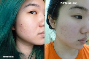 Before/After for isoi serum